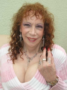 After breast implants and facial surgery - May 2007